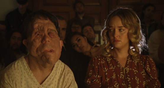 Adam Pearson and Jess Weixler in a scene from <i>Chained for Life</i>, courtesy Kino Lorber